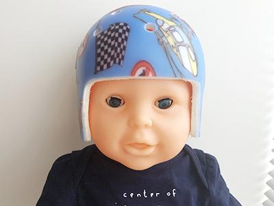 ヘルメット 治療